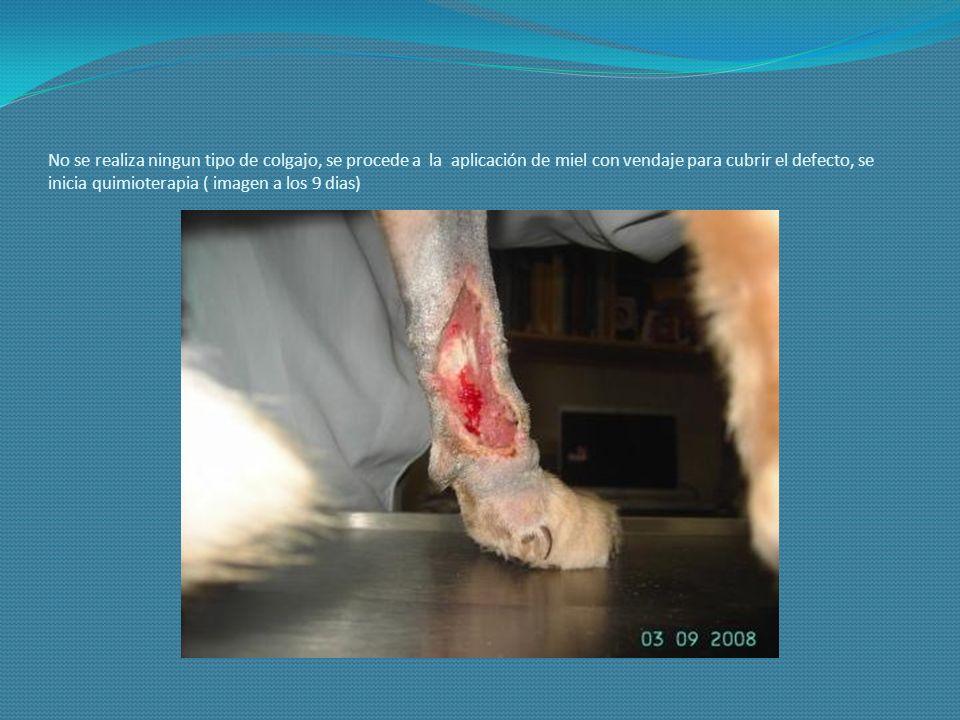 No se realiza ningun tipo de colgajo, se procede a la aplicación de miel con vendaje para cubrir el defecto, se inicia quimioterapia ( imagen a los 9