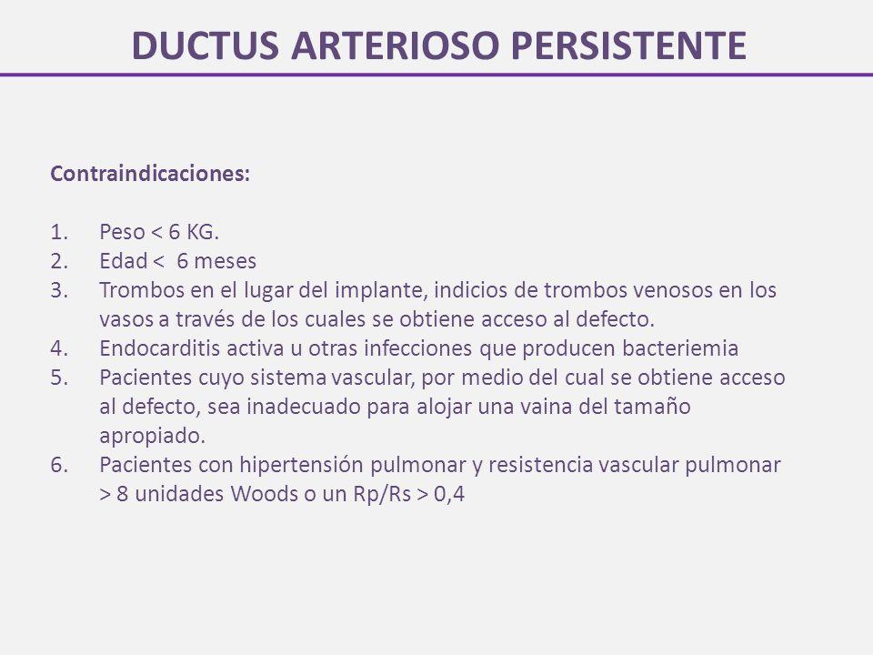 DUCTUS ARTERIOSO PERSISTENTE Contraindicaciones: 1.Peso < 6 KG.