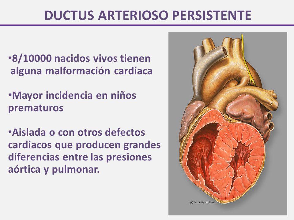 DUCTUS ARTERIOSO PERSISTENTE 8/10000 nacidos vivos tienen alguna malformación cardiaca Mayor incidencia en niños prematuros Aislada o con otros defectos cardiacos que producen grandes diferencias entre las presiones aórtica y pulmonar.