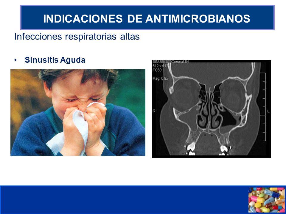 Comité de Prevención y Control de Infecciones Asociadas a la Atención de Salud INDICACIONES DE ANTIMICROBIANOS Infecciones respiratorias altas Sinusitis Aguda