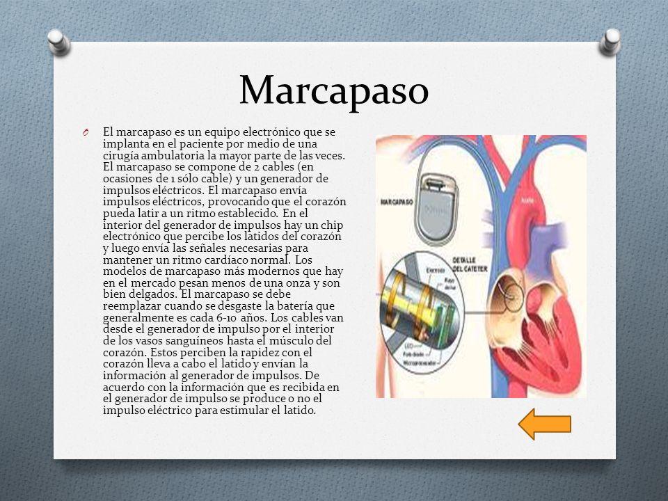 Marcapaso O El marcapaso es un equipo electrónico que se implanta en el paciente por medio de una cirugía ambulatoria la mayor parte de las veces. El