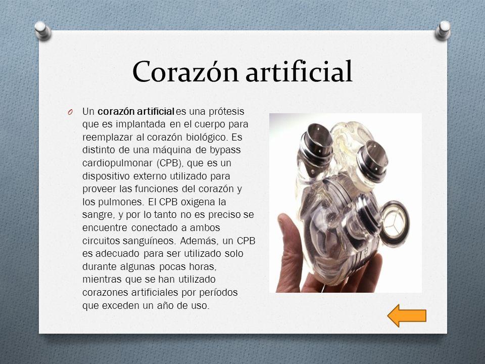 Corazón artificial O Un corazón artificial es una prótesis que es implantada en el cuerpo para reemplazar al corazón biológico. Es distinto de una máq