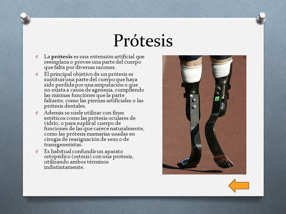 Prótesis O La prótesis es una extensión artificial que reemplaza o provee una parte del cuerpo que falta por diversas razones. O El principal objetivo