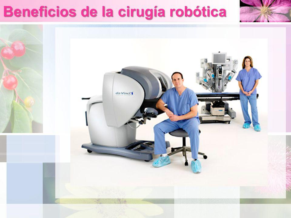 Beneficios de la cirugía robótica
