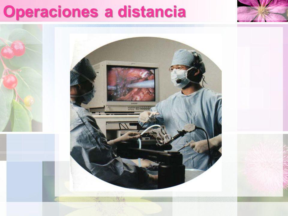 Operaciones a distancia