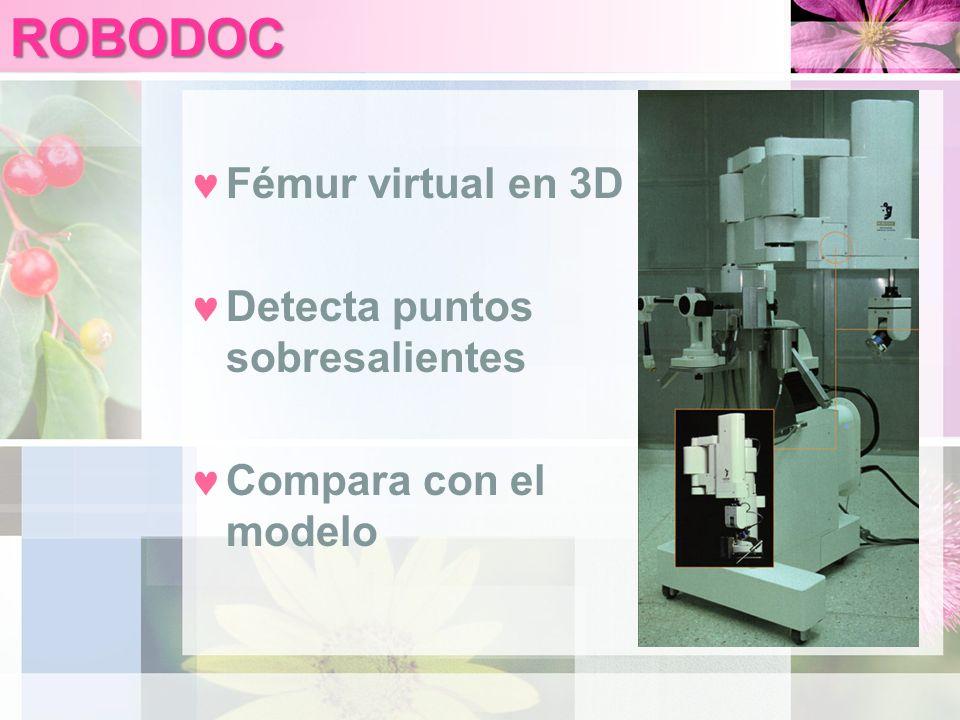 ROBODOC Fémur virtual en 3D Detecta puntos sobresalientes Compara con el modelo