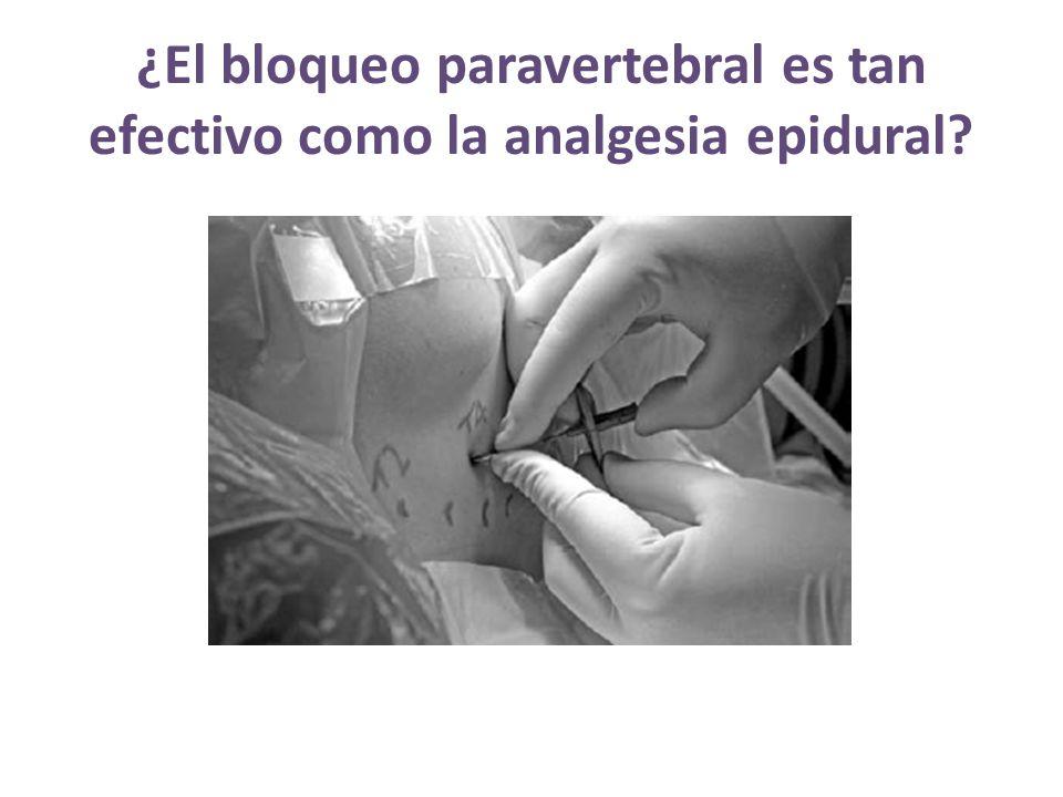 ¿El bloqueo paravertebral es tan efectivo como la analgesia epidural?