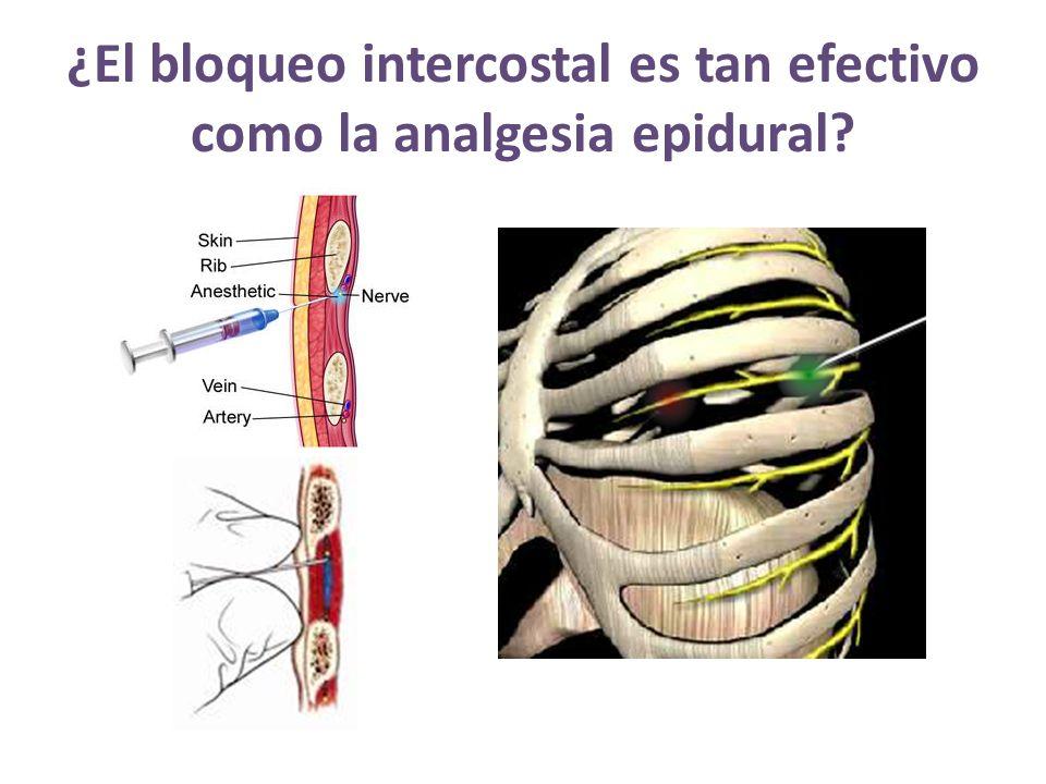 ¿El bloqueo intercostal es tan efectivo como la analgesia epidural?