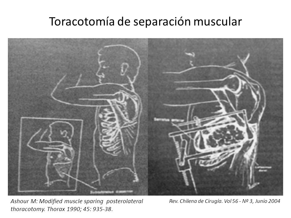Toracotomía de separación muscular Rev. Chilena de Cirugía. Vol 56 - Nº 3, Junio 2004 Ashour M: Modified muscle sparing posterolateral thoracotomy. Th