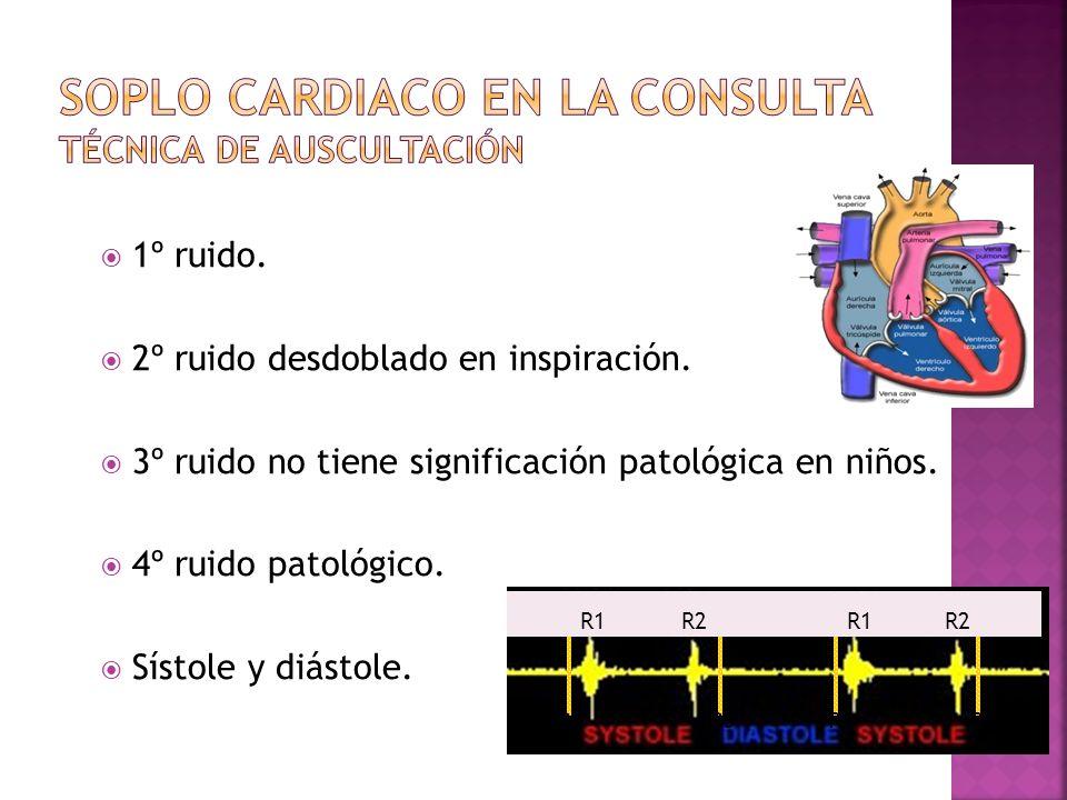 1º ruido. 2º ruido desdoblado en inspiración. 3º ruido no tiene significación patológica en niños. 4º ruido patológico. Sístole y diástole. R1 R2 R4 R