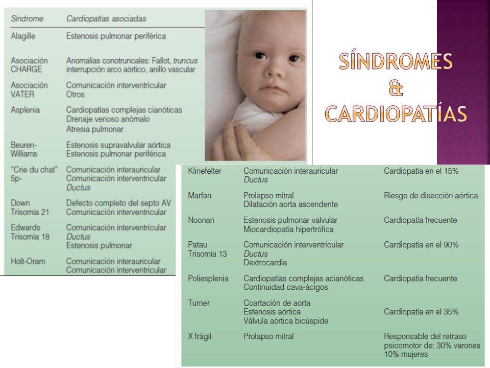 Clasificación Cardiopatías Congénitas CARDIOPATIAS CONGENITAS ACIANOTICAS Cortocircuito de izquierda a derecha: CIV, CIA, ductus, canal aurículo- ventricular, drenaje venoso anómalo pulmonar parcial Obstructivas Corazón Izquierdo: Coartación aórtica, estenosis aórtica, estenosis mitral, hipoplasia ventrículo izquierdo Insuficiencias valvulares y otras: Insuficiencia mitral, insuficiencia aórtica, estenosis pulmonar, estenosis ramas pulmonares CARDIOPATIAS CONGENITAS CIANOTICA (cortocircuito de derecha a izquierdaS) Obstructivas Corazón Derecho Tetralogía de Fallot, atresia pulmonar, ventrículo único o atresia tricuspídea con estenosis pulmonar Mezcla Total Ventrículo único o atresia tricuspídea sin estenosis pulmonar, truncus arterioso, drenaje venoso anómalo pulmonar total Falta de Mezcla Transposición de Grandes Arterias