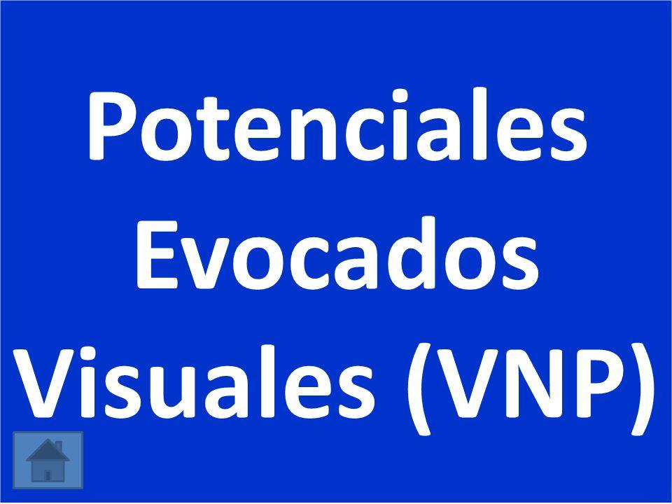 Potenciales Evocados Visuales (VNP)