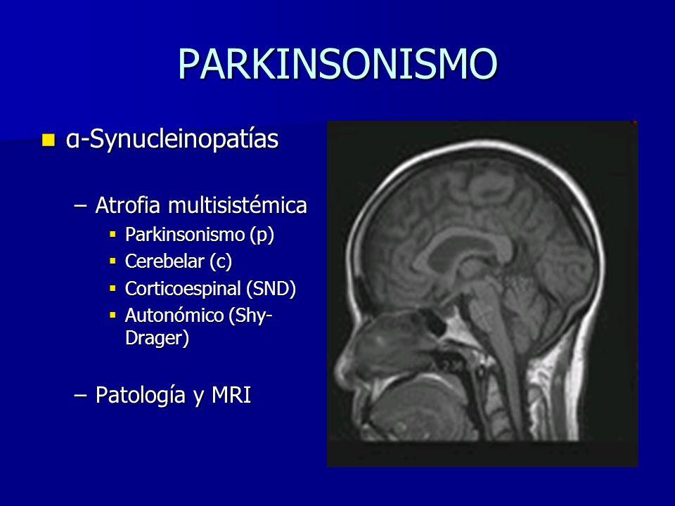 PARKINSONISMO α-Synucleinopatías α-Synucleinopatías –Atrofia multisistémica Parkinsonismo (p) Parkinsonismo (p) Cerebelar (c) Cerebelar (c) Corticoespinal (SND) Corticoespinal (SND) Autonómico (Shy- Drager) Autonómico (Shy- Drager) –Patología y MRI