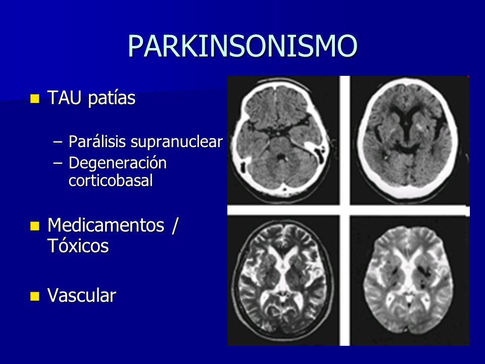 PARKINSONISMO TAU patías TAU patías –Parálisis supranuclear –Degeneración corticobasal Medicamentos / Tóxicos Medicamentos / Tóxicos Vascular Vascular