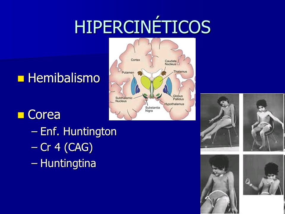 HIPERCINÉTICOS Hemibalismo Hemibalismo Corea Corea –Enf. Huntington –Cr 4 (CAG) –Huntingtina