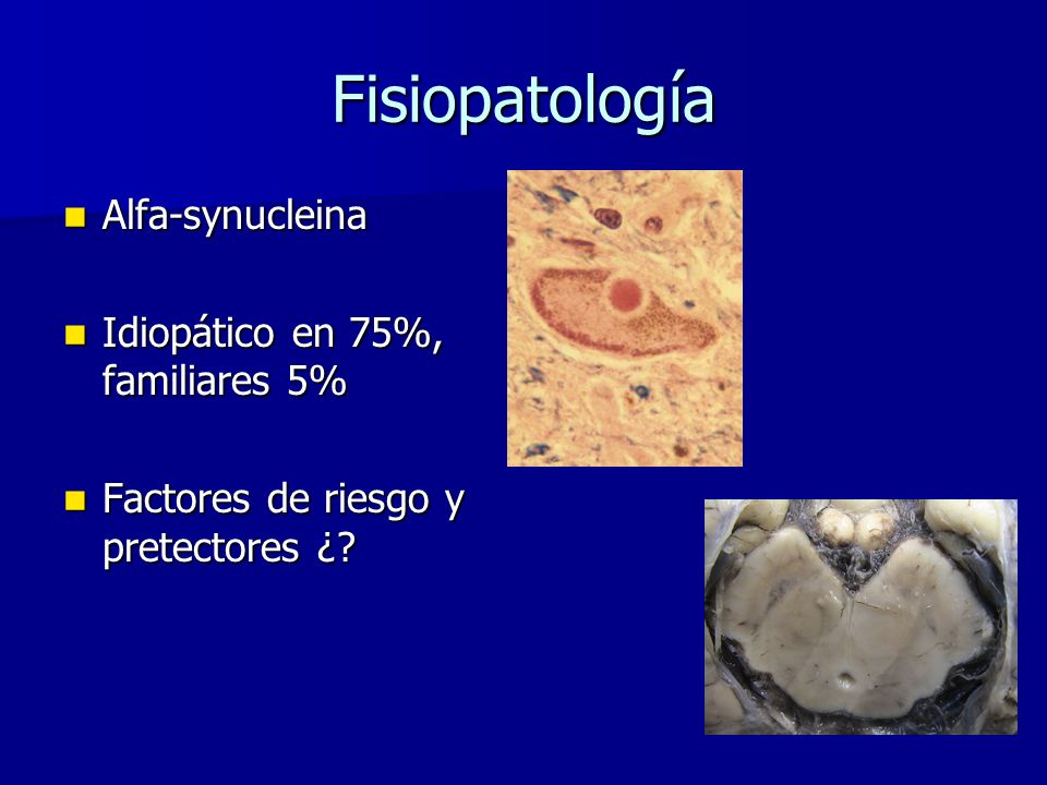 Fisiopatología Alfa-synucleina Alfa-synucleina Idiopático en 75%, familiares 5% Idiopático en 75%, familiares 5% Factores de riesgo y pretectores ¿? F