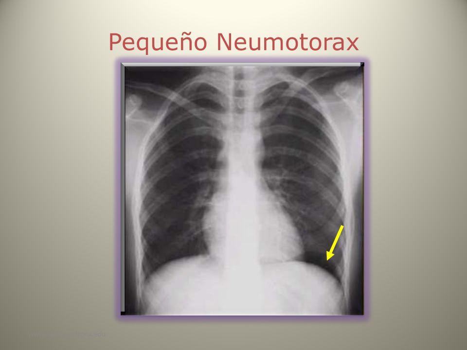 www.reeme.arizona.edu Pequeño Neumotorax