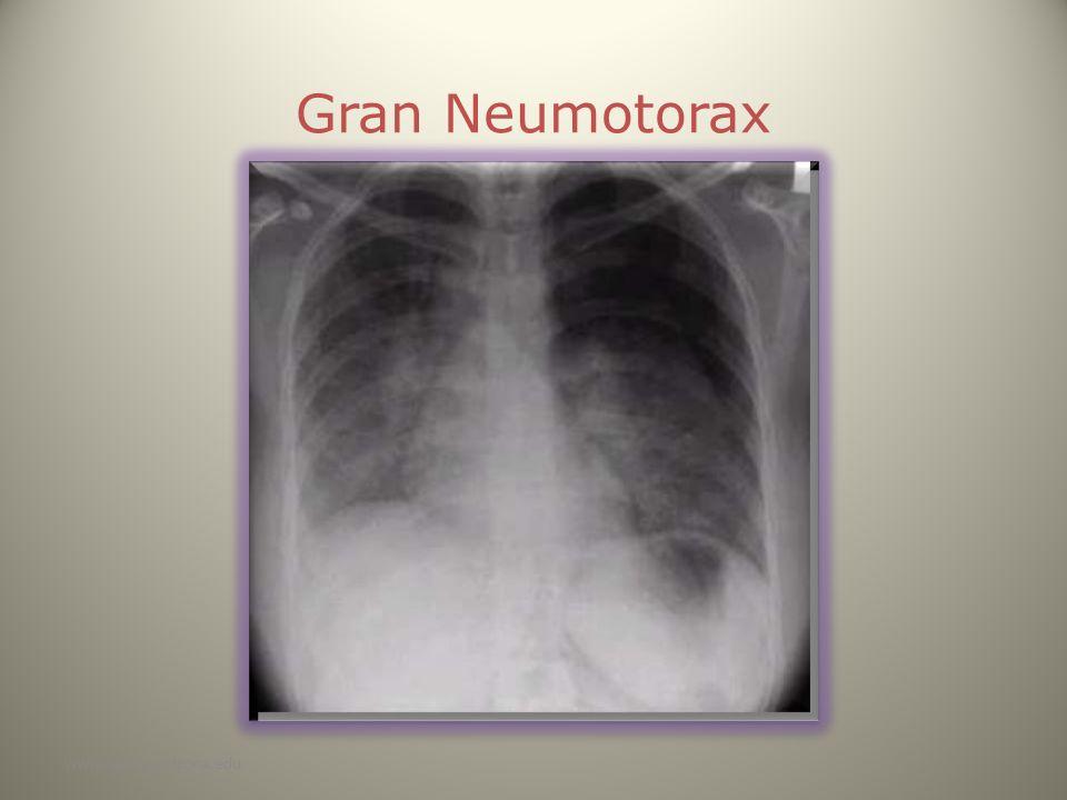 www.reeme.arizona.edu Gran Neumotorax