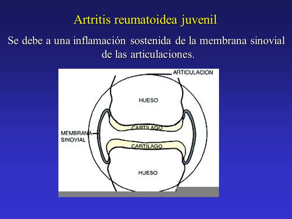 Se debe a una inflamación sostenida de la membrana sinovial de las articulaciones. Artritis reumatoidea juvenil