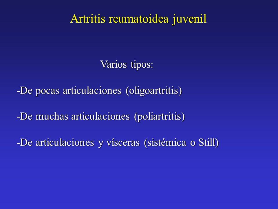 Varios tipos: -De pocas articulaciones (oligoartritis) -De muchas articulaciones (poliartritis) -De articulaciones y vísceras (sistémica o Still) Artr