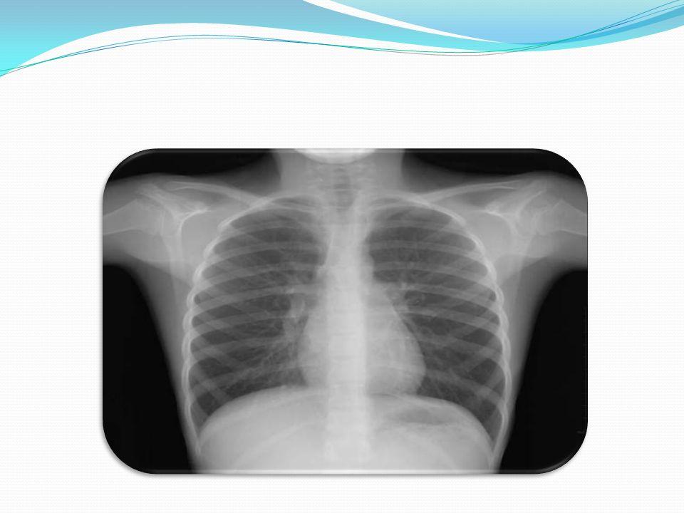 Cuadro clínico Inspección ( Disnea ) Palpación (aumento del fremito ) Percusión ( Matidez ) Auscultación (Disminucion m vesicular)