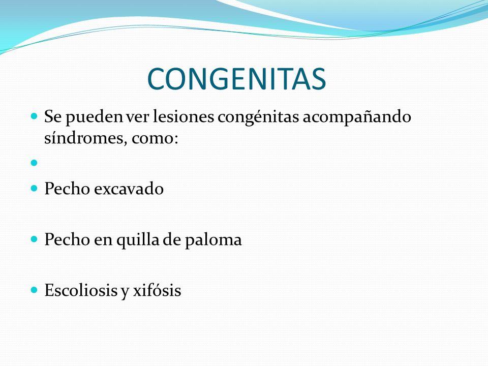 PATOLOGIAS DEl ESPACIO PLEURAL NEUMOTORAX.HEMOTORAX HIDROTORAX QUILOTORAX PIOTORAX ( EMPIEMA ).
