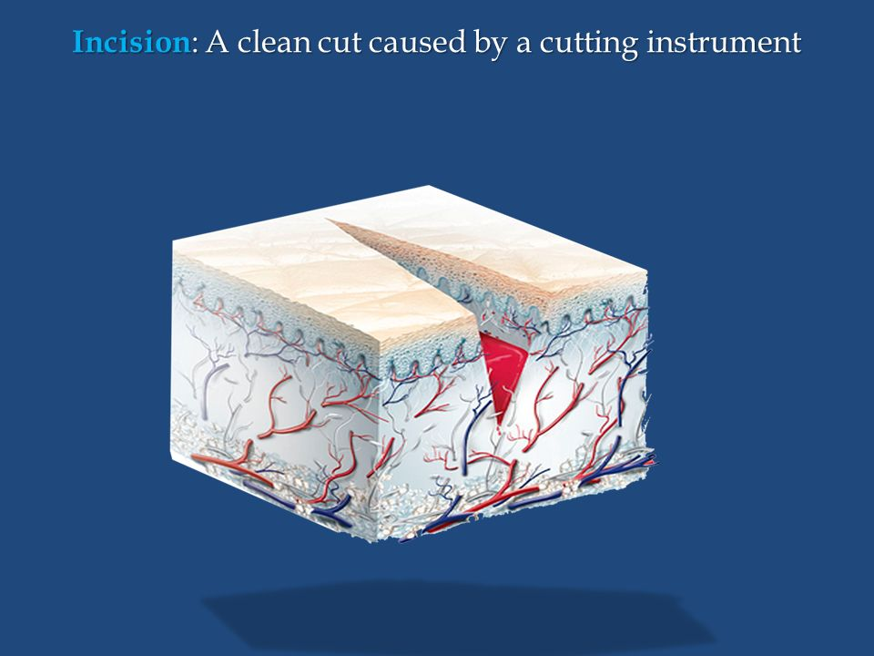 Incision : A clean cut caused by a cutting instrument
