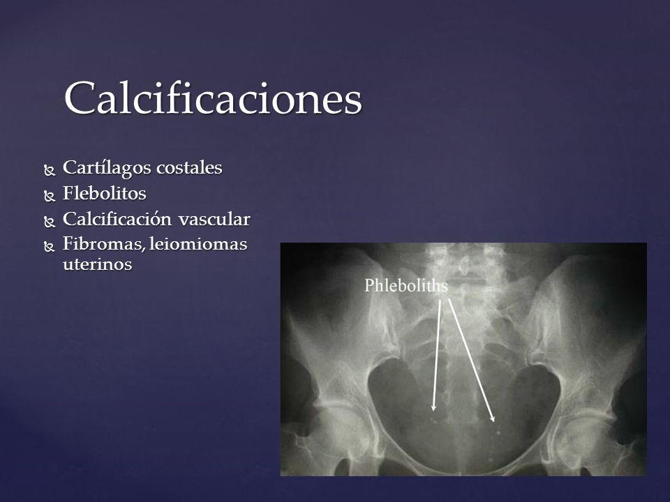 Calcificaciones Cartílagos costales Cartílagos costales Flebolitos Flebolitos Calcificación vascular Calcificación vascular Fibromas, leiomiomas uteri