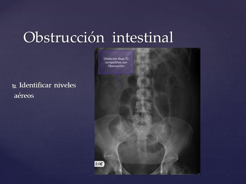 Obstrucción intestinal Identificar niveles Identificar niveles aéreos aéreos