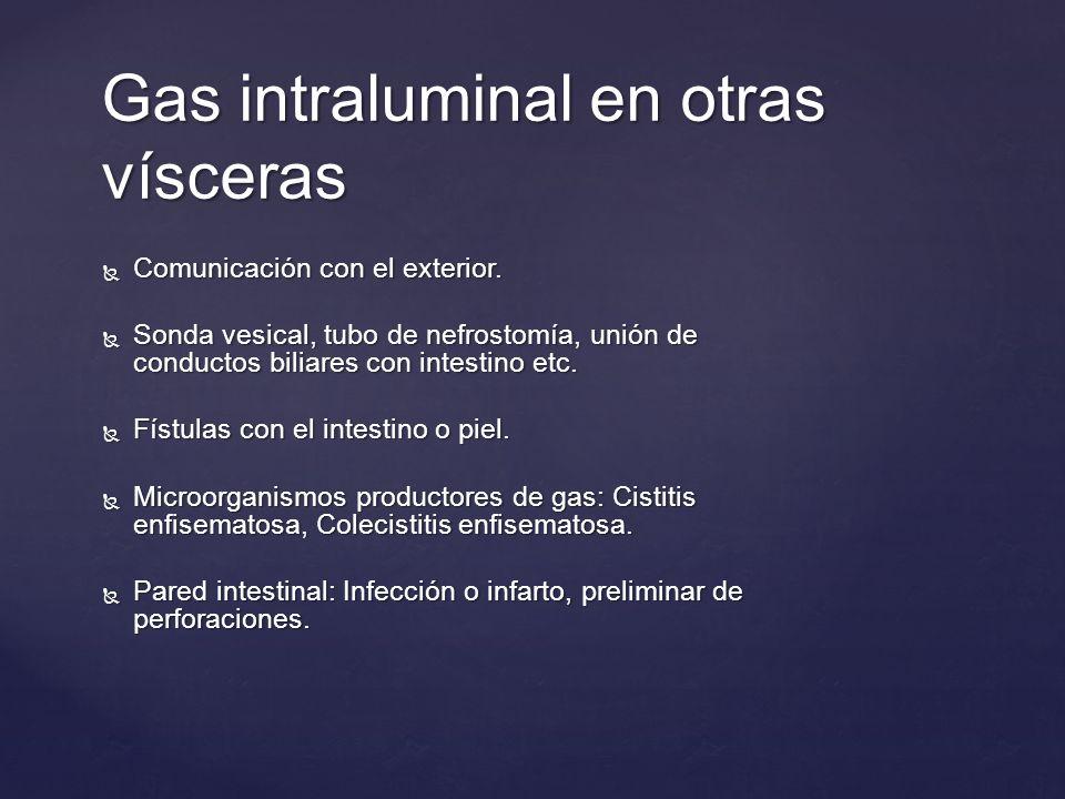 Gas intraluminal en otras vísceras Comunicación con el exterior. Comunicación con el exterior. Sonda vesical, tubo de nefrostomía, unión de conductos