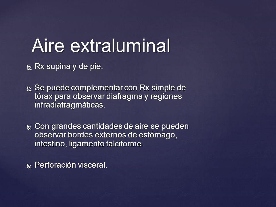 Aire extraluminal Rx supina y de pie. Rx supina y de pie. Se puede complementar con Rx simple de tórax para observar diafragma y regiones infradiafrag