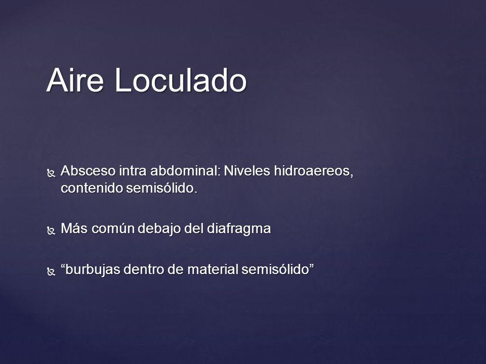 Aire Loculado Absceso intra abdominal: Niveles hidroaereos, contenido semisólido. Absceso intra abdominal: Niveles hidroaereos, contenido semisólido.