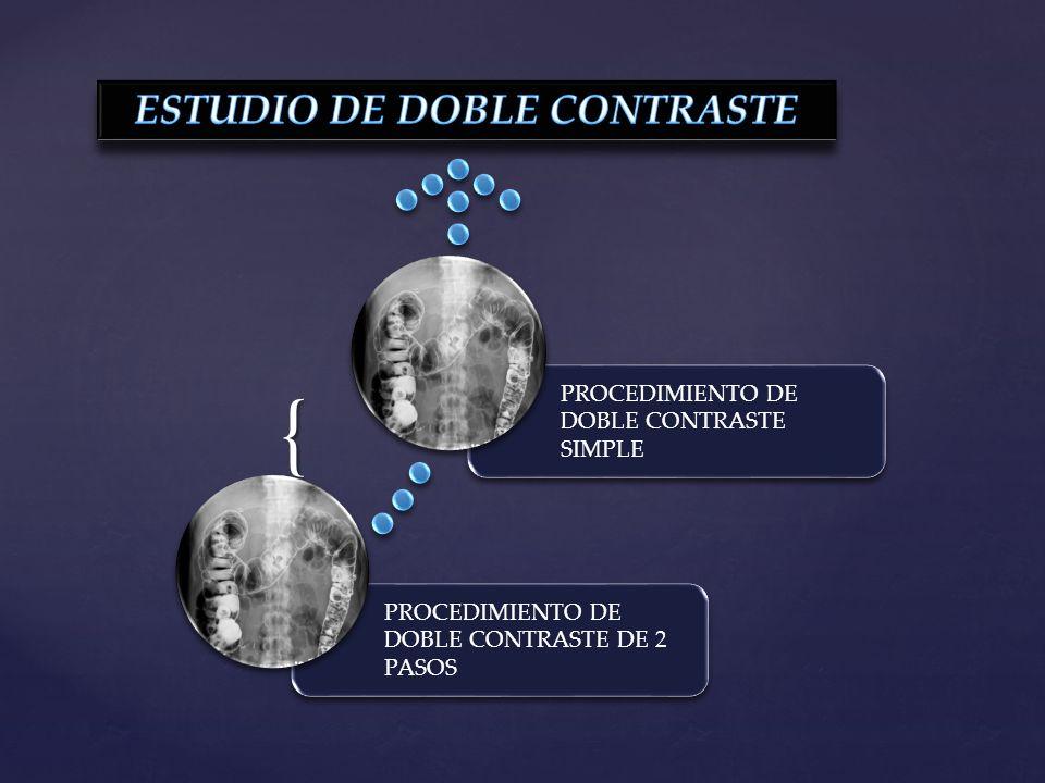 { PROCEDIMIENTO DE DOBLE CONTRASTE DE 2 PASOS PROCEDIMIENTO DE DOBLE CONTRASTE SIMPLE
