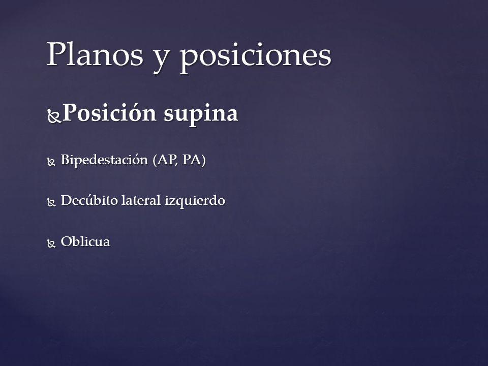 Planos y posiciones Posición supina Posición supina Bipedestación (AP, PA) Bipedestación (AP, PA) Decúbito lateral izquierdo Decúbito lateral izquierd