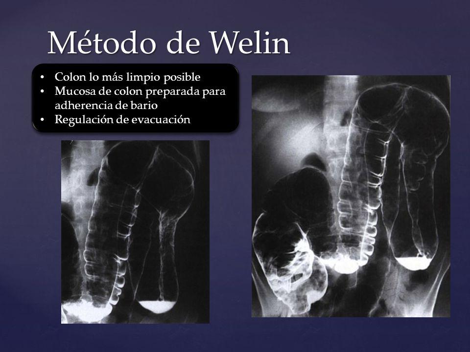 Método de Welin Colon lo más limpio posible Mucosa de colon preparada para adherencia de bario Regulación de evacuación Colon lo más limpio posible Mu