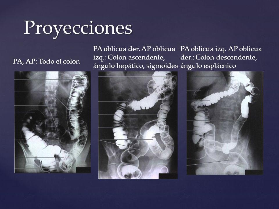 Proyecciones PA, AP: Todo el colon PA oblicua der. AP oblicua izq.: Colon ascendente, ángulo hepático, sigmoides PA oblicua izq. AP oblicua der.: Colo