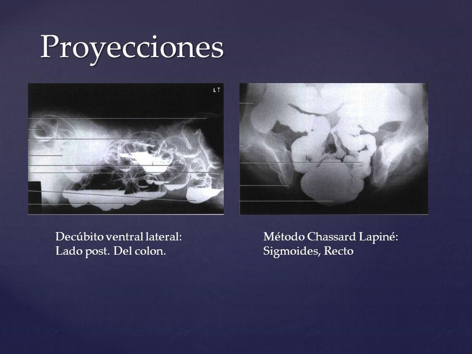 Decúbito ventral lateral: Lado post. Del colon. Método Chassard Lapiné: Sigmoides, Recto Proyecciones
