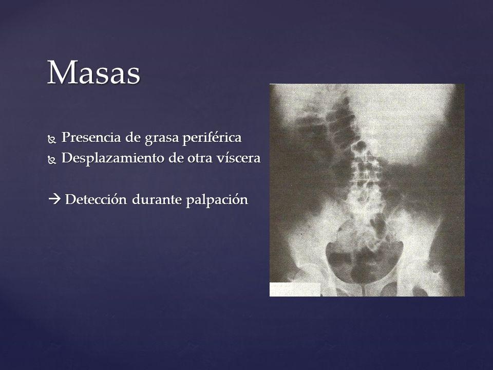 Masas Presencia de grasa periférica Presencia de grasa periférica Desplazamiento de otra víscera Desplazamiento de otra víscera Detección durante palp