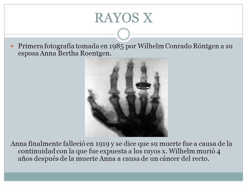 RAYOS X Primera fotografía tomada en 1985 por Wilhelm Conrado Röntgen a su esposa Anna Bertha Roentgen. Anna finalmente falleció en 1919 y se dice que