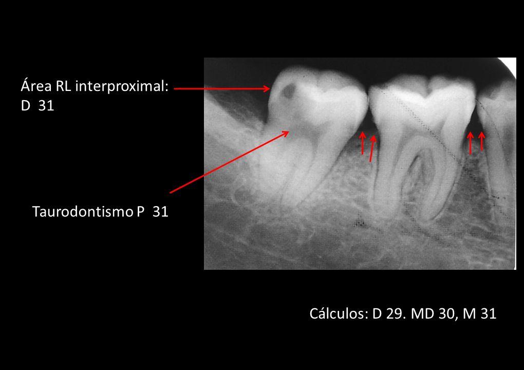 Taurodontismo P 31 Área RL interproximal: D 31 Cálculos: D 29. MD 30, M 31
