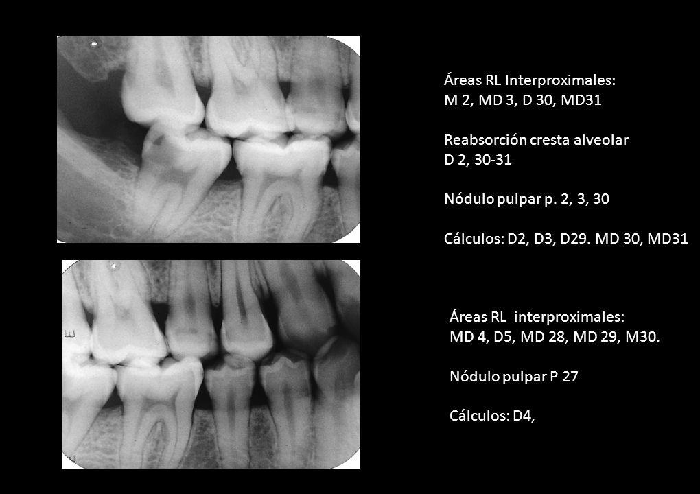 Áreas RL Interproximales: M 2, MD 3, D 30, MD31 Reabsorción cresta alveolar D 2, 30-31 Nódulo pulpar p. 2, 3, 30 Cálculos: D2, D3, D29. MD 30, MD31 Ár