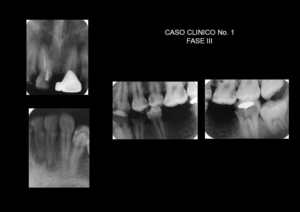 Áreas RL Interproximales: M 2, MD 3, D 30, MD31 Reabsorción cresta alveolar D 2, 30-31 Nódulo pulpar p.