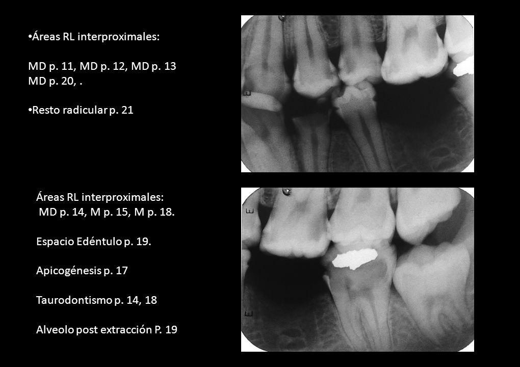 Áreas RL interproximales: MD p. 11, MD p. 12, MD p. 13 MD p. 20,. Resto radicular p. 21 Áreas RL interproximales: MD p. 14, M p. 15, M p. 18. Espacio