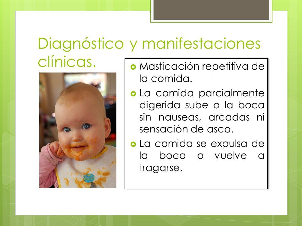 Diagnóstico y manifestaciones clínicas. Masticación repetitiva de la comida. La comida parcialmente digerida sube a la boca sin nauseas, arcadas ni se