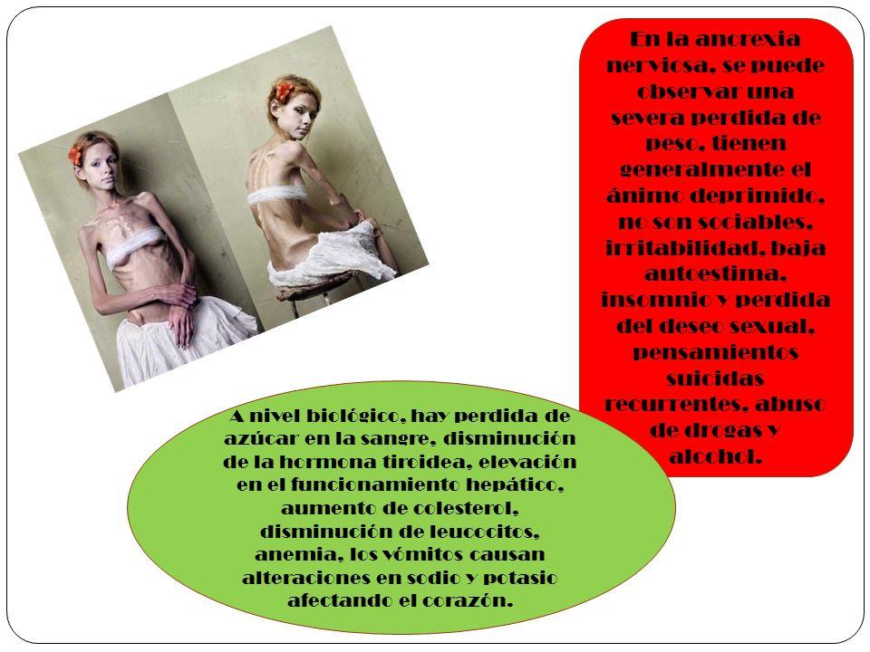 En la anorexia nerviosa, se puede observar una severa perdida de peso, tienen generalmente el ánimo deprimido, no son sociables, irritabilidad, baja a