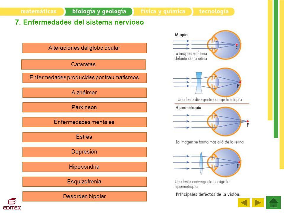7. Enfermedades del sistema nervioso Alteraciones del globo ocular Cataratas Enfermedades producidas por traumatismos Alzhéimer Párkinson Enfermedades