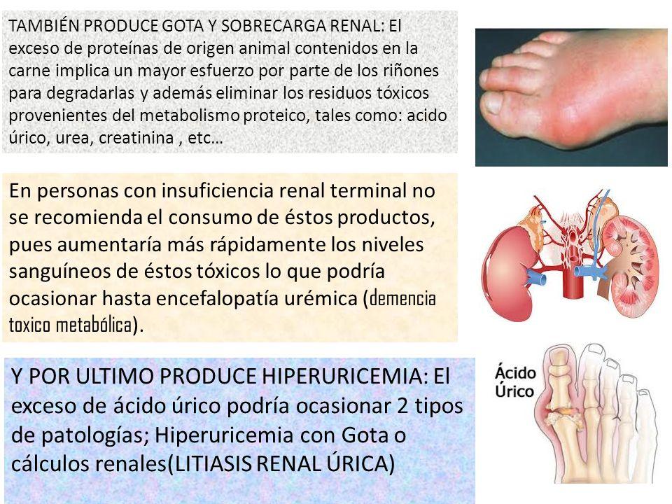 Y POR ULTIMO PRODUCE HIPERURICEMIA: El exceso de ácido úrico podría ocasionar 2 tipos de patologías; Hiperuricemia con Gota o cálculos renales(LITIASI