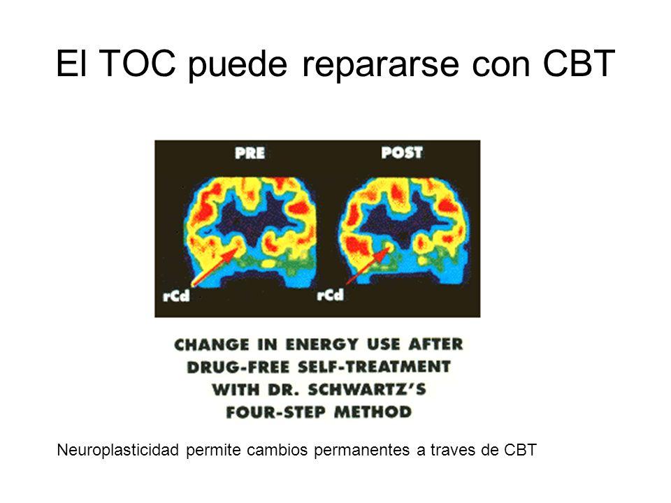 El TOC puede repararse con CBT Neuroplasticidad permite cambios permanentes a traves de CBT