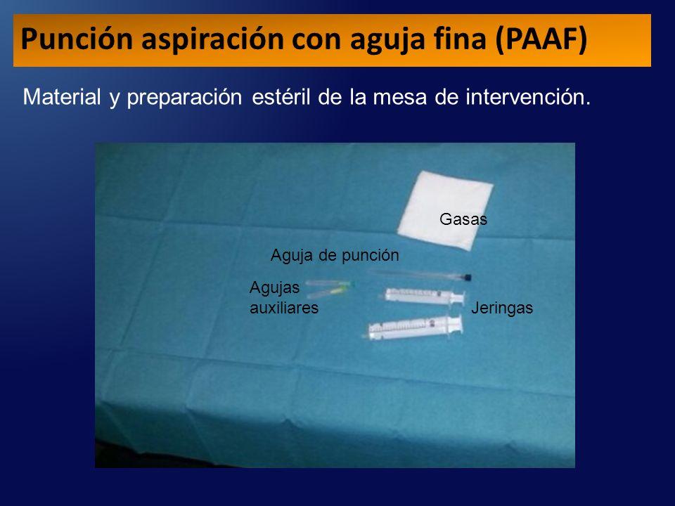 Material y preparación estéril de la mesa de intervención.