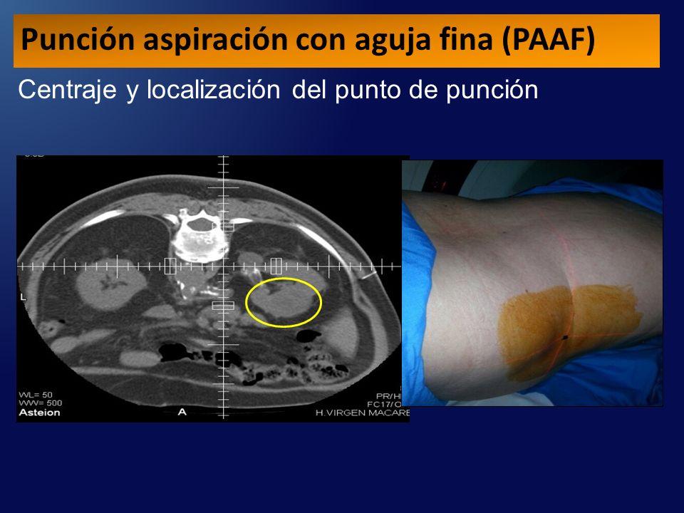 Centraje y localización del punto de punción Punción aspiración con aguja fina (PAAF)